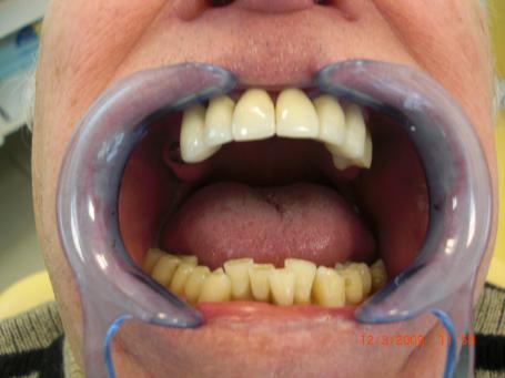 pose d 39 implants dentaires et couronne c ramique cannes 06400 dentiste dr mika l smadja. Black Bedroom Furniture Sets. Home Design Ideas
