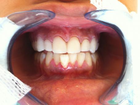 facettes dentaires et blanchiment cannes 06400 dentiste dr mika l smadja. Black Bedroom Furniture Sets. Home Design Ideas